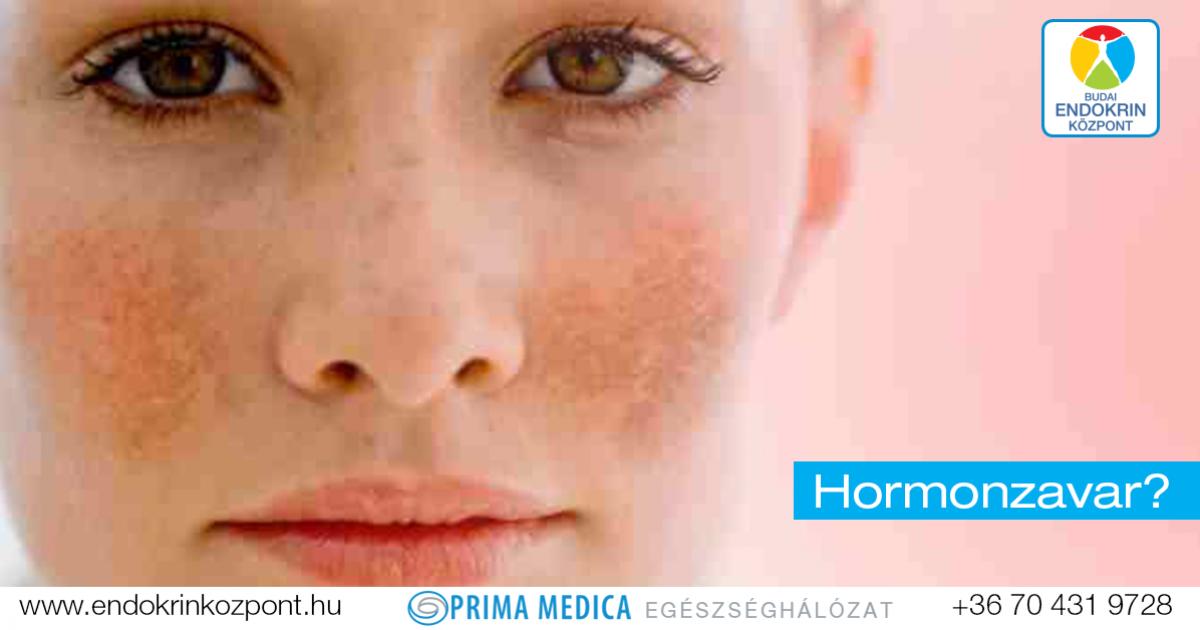 Jak na pigmentové skvrny | Hyperpigmentace | extraszoftver.hu
