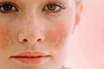 Májfoltot hormonzavarok is okozhatnak
