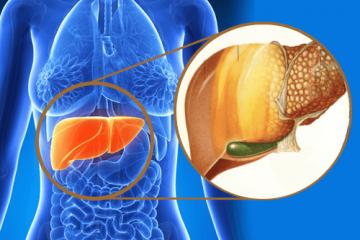 Az inzulinrezisztencia kezelése a zsírmájat is gyógyítja