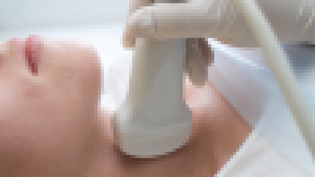 Basedow-kór is állhat a pajzsmirigy túlműködés hátterében