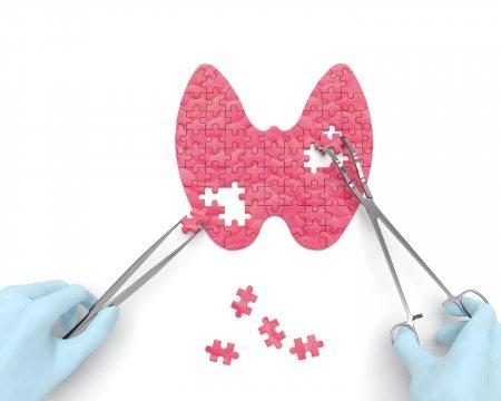 A pajzsmirigy működészavarai, diagnosztikája, kezelése- Prima Medica szakmai nap