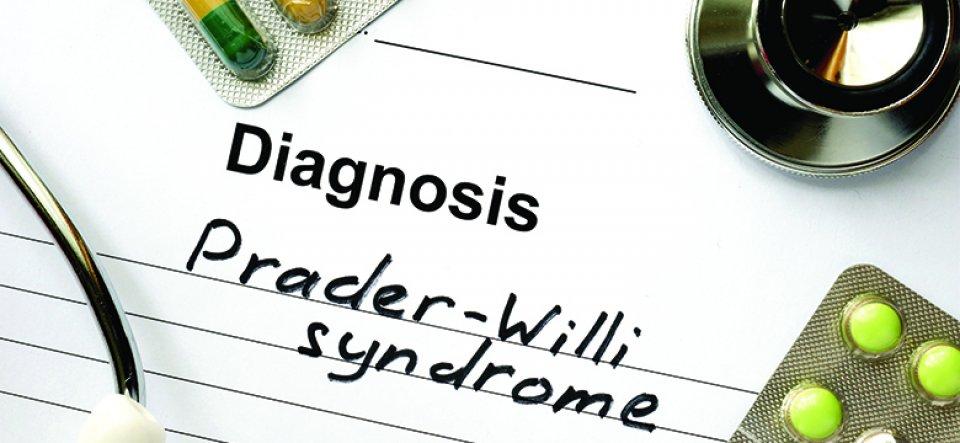Prader Willi szindróma kivizsgálása és kezelése