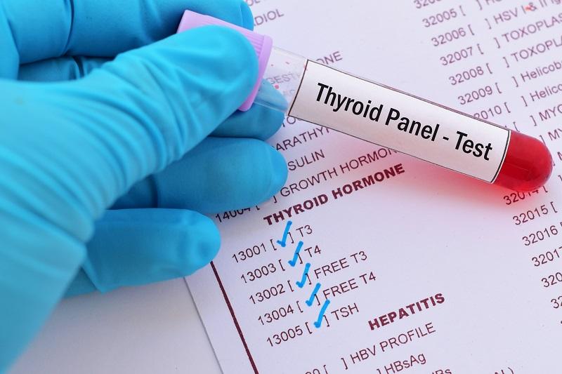 Tünetek esetén első lépés az endokrinológiai vizsgálat.