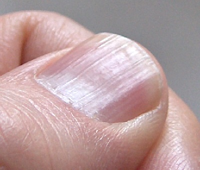 Pajzsmirigybetegségek bőrtünetei